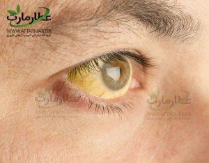 زردی-پوست-از-علائم-کبد-چرب